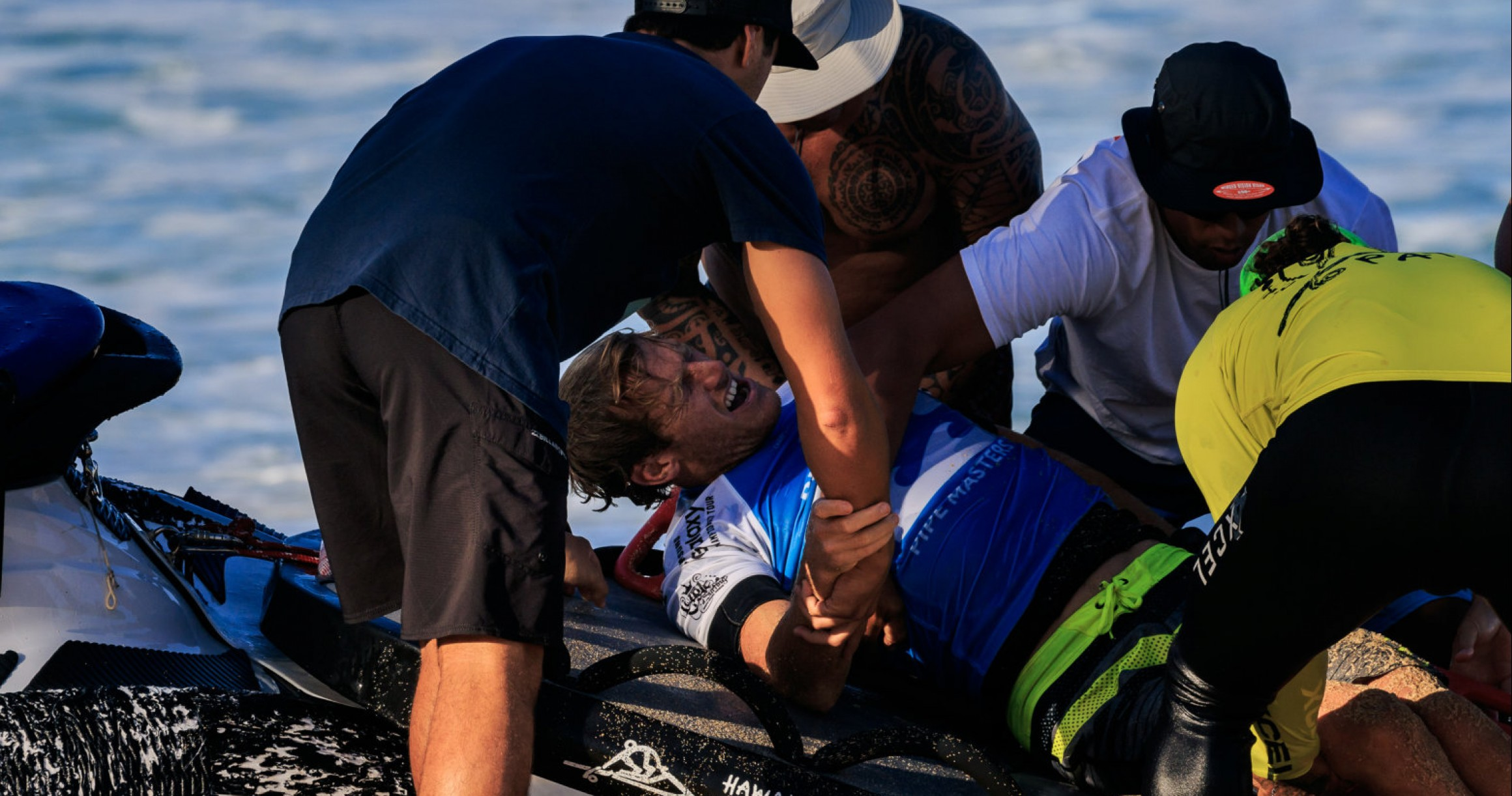 What Are the Worst Injuries in Professional Surfing